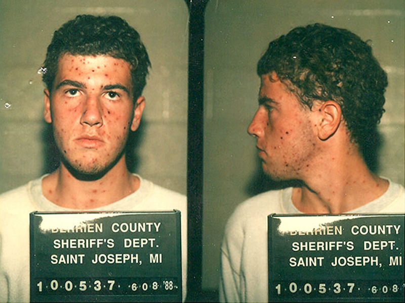 James Frey was arrested for drunk driving. Authorities did not want him in their facility because of the chicken pox.